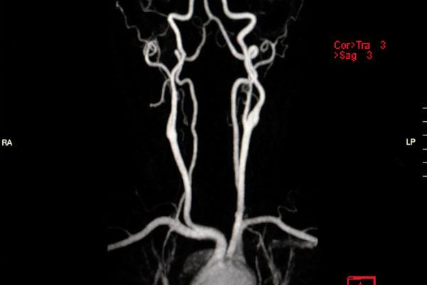 MR Angiographie Halsarterien
