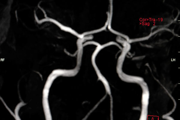 MR Angiographie Hirnarterien