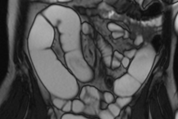 Radiologie DDr. Artmann Wels, MR Koloskopie